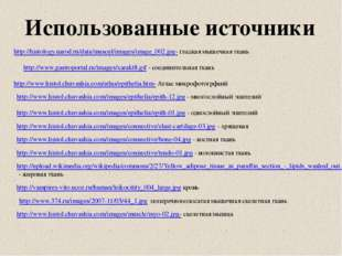 http://histology.narod.ru/data/muscul/images/image_002.jpg- гладкая мышечная