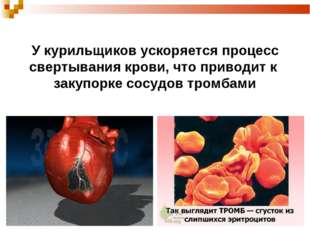 У курильщиков ускоряется процесс свертывания крови, что приводит к закупорке