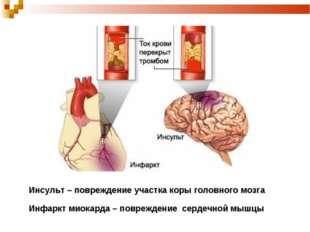 Инсульт – повреждение участка коры головного мозга Инфаркт миокарда – поврежд
