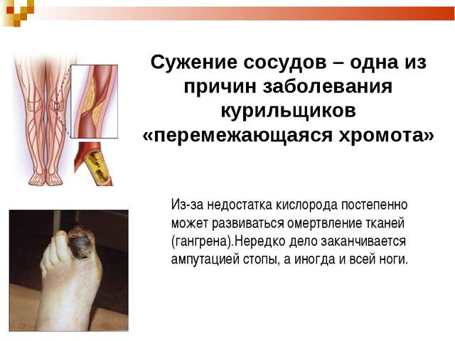 Сужение сосудов – одна из причин заболевания курильщиков «перемежающаяся хром...