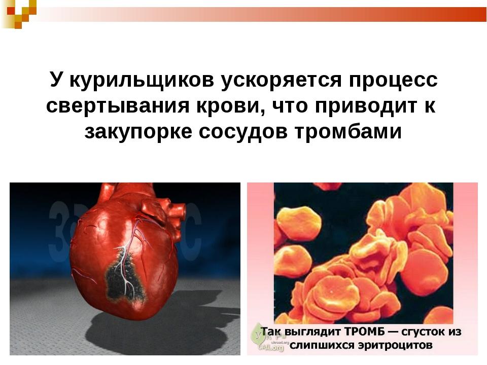 У курильщиков ускоряется процесс свертывания крови, что приводит к закупорке...