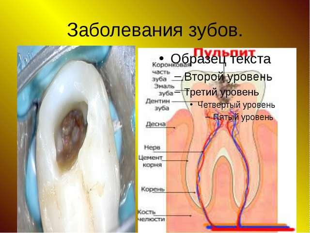 Заболевания зубов.