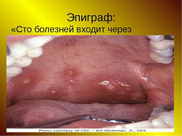 Эпиграф: «Сто болезней входит через рот».