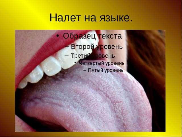 Налет на языке.