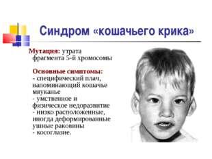 Синдром «кошачьего крика» Мутация: утрата фрагмента 5-й хромосомы Основные си