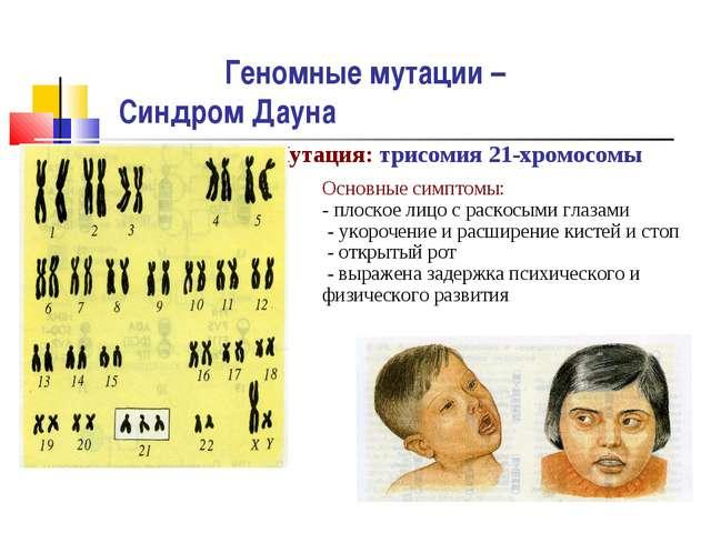 Геномные мутации – Синдром Дауна Мутация: трисомия 21-хромосомы Основные симп...