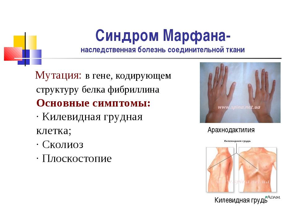 Синдром Марфана- наследственная болезнь соединительной ткани Мутация: в гене,...