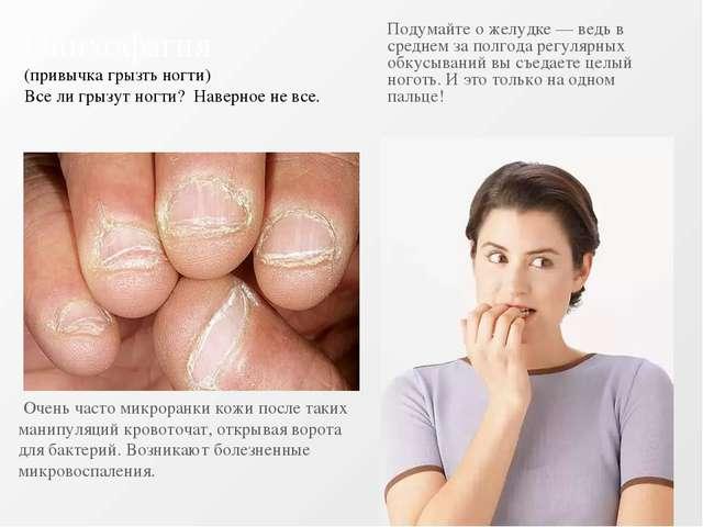 Онихофагия (привычка грызть ногти) Все ли грызут ногти? Наверное не все. Очен...