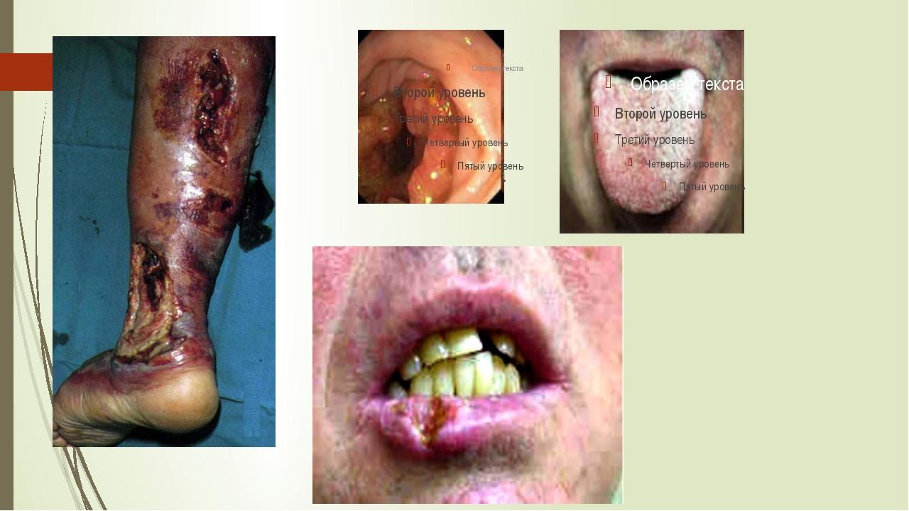 Рак пищевода Рак полости рта