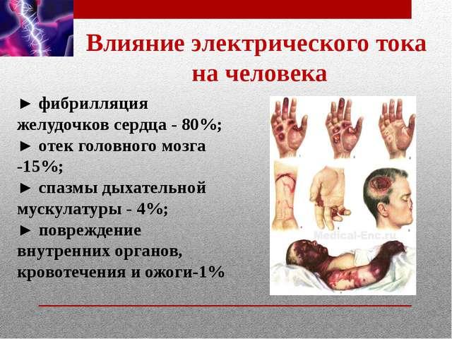 Влияние электрического тока на человека ► фибрилляция желудочков сердца - 80%...