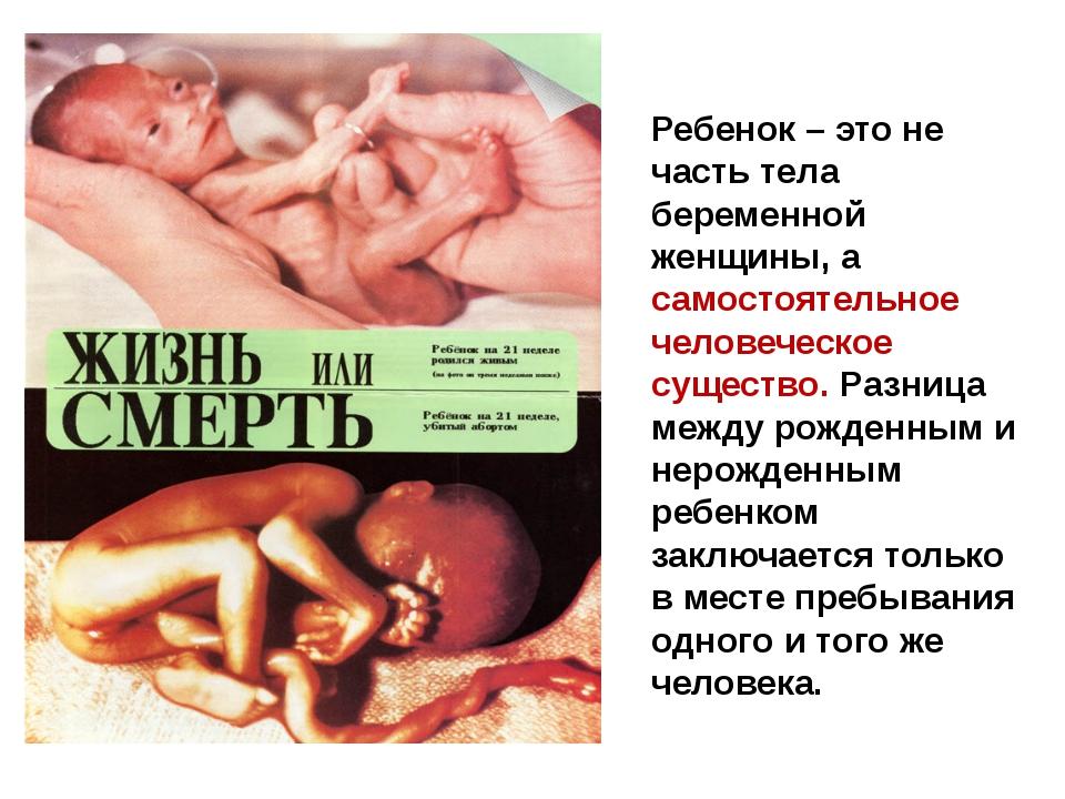Ребенок – это не часть тела беременной женщины, а самостоятельное человеческо...