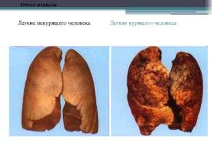 Легкие курящего человека Легкие некурящего человека Отчет медиков