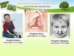 Синдром Дауна (трисомия по 21 паре) Синдром Эдвардса (трисомия по 18 паре) Си