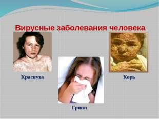Вирусные заболевания человека Краснуха Корь Грипп