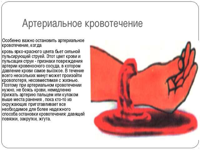 Артериальное кровотечение Особенно важно остановить артериальное кровотечение...
