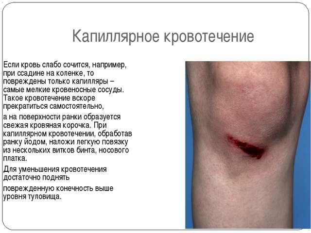 Капиллярное кровотечение Если кровь слабо сочится, например, при ссадине на к...