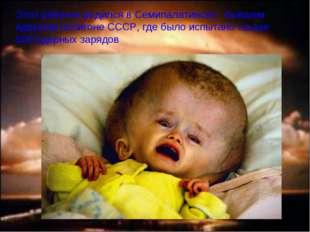 Этот ребенок родился в Семипалатинске - бывшем ядерном полигоне СССР, где был
