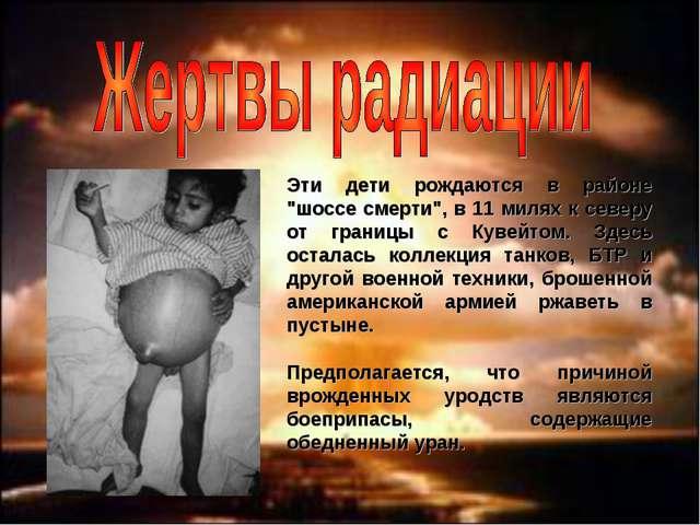 """Эти дети рождаются в районе """"шоссе смерти"""", в 11 милях к северу от границы с..."""