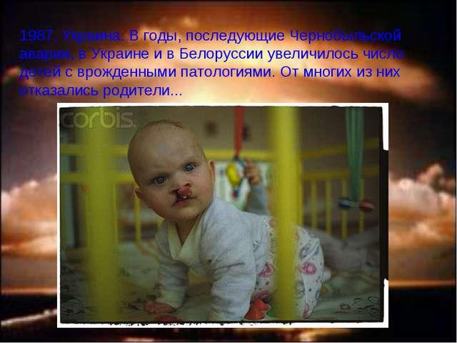 1987, Украина. В годы, последующие Чернобыльской аварии, в Украине и в Белору...