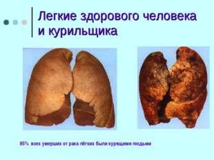 Легкие здорового человека и курильщика 85% всех умерших от рака лёгких были к
