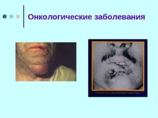 Онкологические заболевания