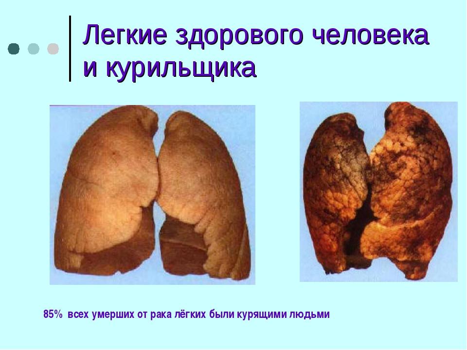 Легкие здорового человека и курильщика 85% всех умерших от рака лёгких были к...