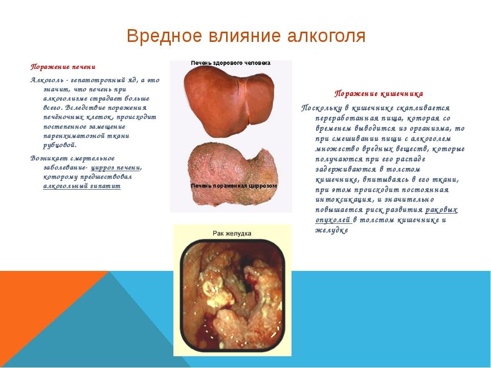 Поражение печени Алкоголь - гепатотропный яд, а это значит, что печень при ал...