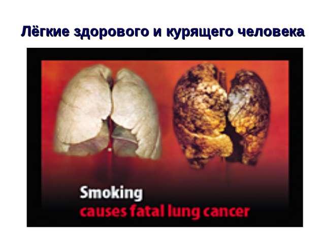 Лёгкие здорового и курящего человека