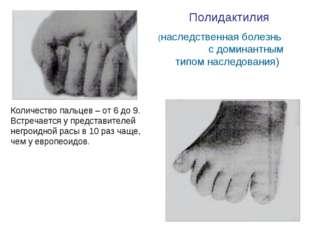 Полидактилия (наследственная болезнь с доминантным типом наследования) Количе