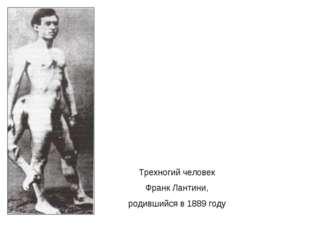 Трехногий человек Франк Лантини, родившийся в 1889 году