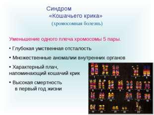 Синдром «Кошачьего крика» Уменьшение одного плеча хромосомы 5 пары. Глубокая