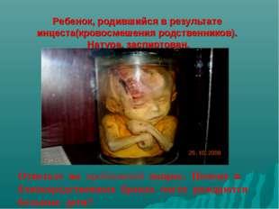 Ребенок, родившийся в результате инцеста(кровосмешения родственников). Натур