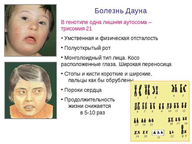 Болезнь Дауна В генотипе одна лишняя аутосома – трисомия 21 Умственная и физ...