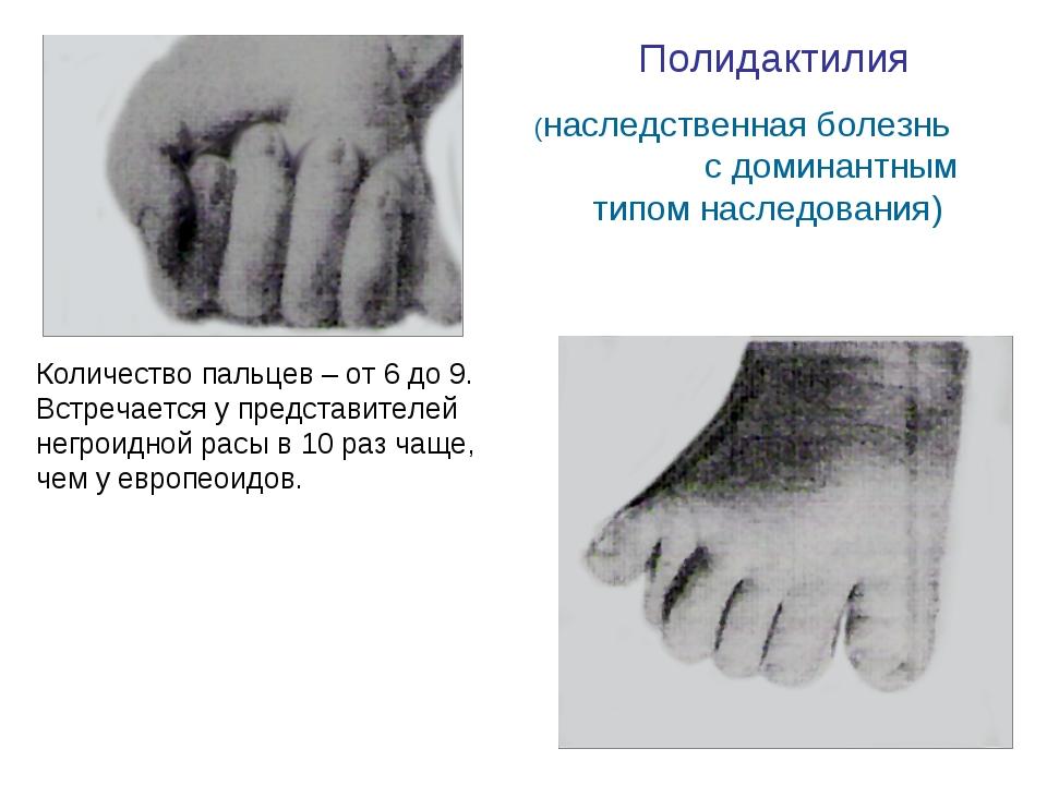 Полидактилия (наследственная болезнь с доминантным типом наследования) Количе...
