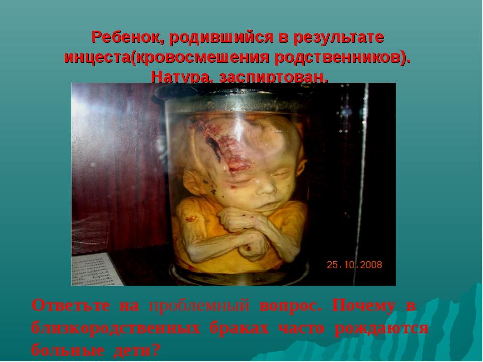 Ребенок, родившийся в результате инцеста(кровосмешения родственников). Натур...