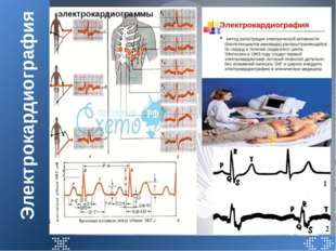 Электрокардиография электрокардиограммы
