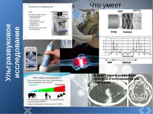 Ультразвуковое исследование Что умеет уль Что умеет ультразвук? Первая УЗ-том