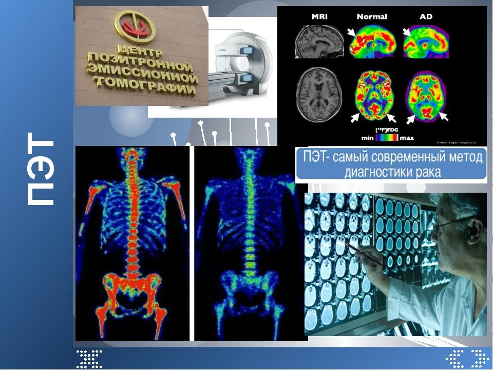 ПЭТ Снимок скелета человека, полученный с помощью ПЭТ