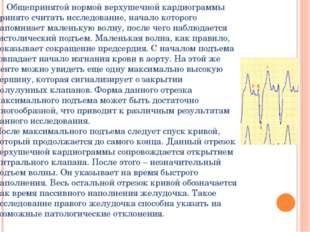 Общепринятой нормой верхушечной кардиограммы принято считать исследование, н