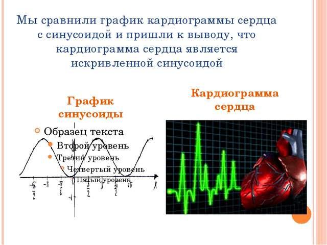 Мы сравнили график кардиограммы сердца с синусоидой и пришли к выводу, что ка...