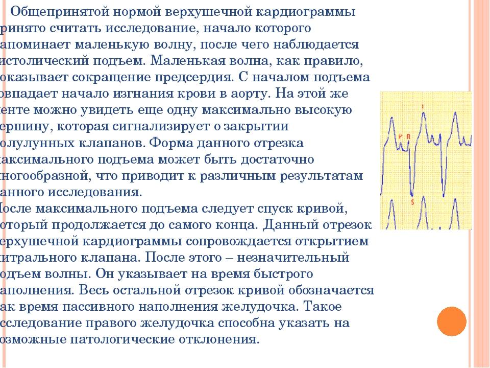 Общепринятой нормой верхушечной кардиограммы принято считать исследование, н...