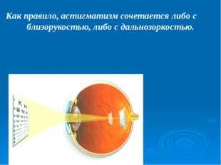 При косоглазии обычно способность нормально видеть сохраняет только тот глаз