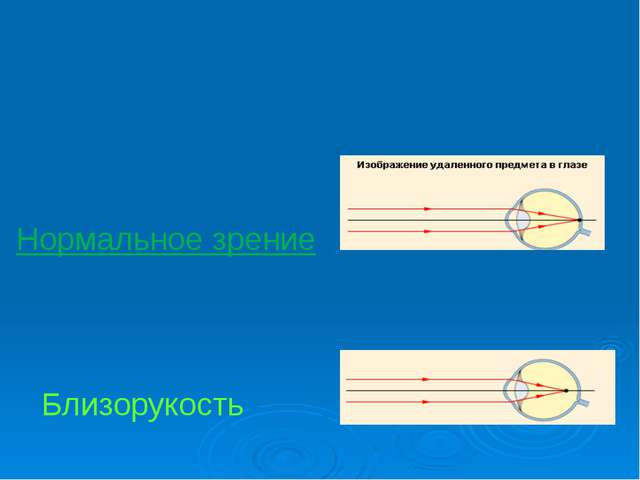 Близорукость - дефект зрения, при котором расстояние между сетчатой оболочко...