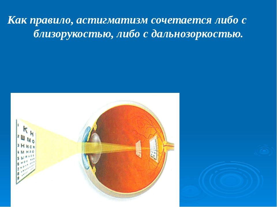 При косоглазии обычно способность нормально видеть сохраняет только тот глаз...