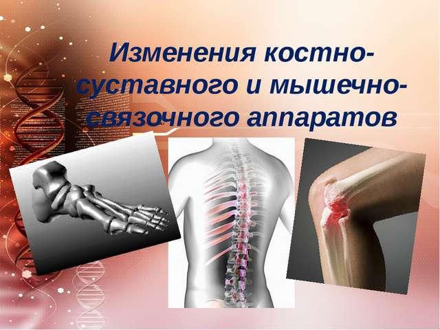 Изменения костно-суставного и мышечно-связочного аппаратов