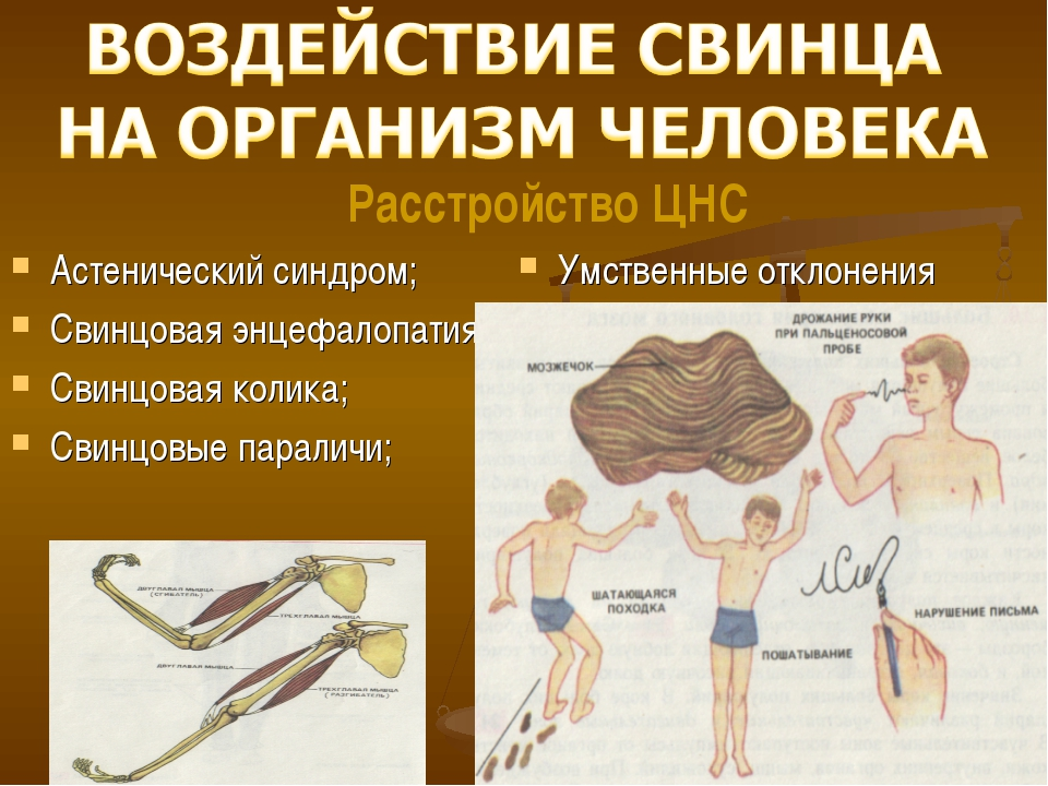 Астенический синдром; Свинцовая энцефалопатия; Свинцовая колика; Свинцовые па...
