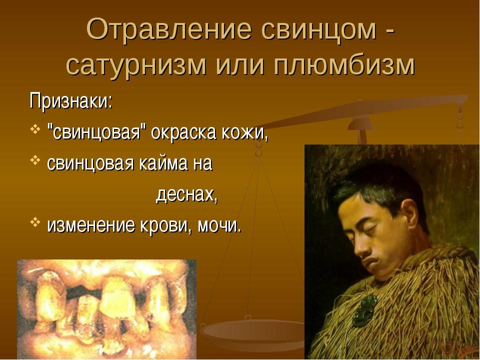 """Отравление свинцом - сатурнизм или плюмбизм Признаки: """"свинцовая"""" окраска кож..."""