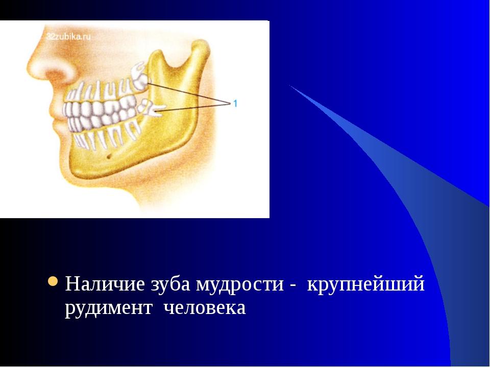 Наличие зуба мудрости - крупнейший рудимент человека