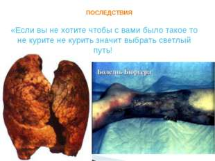 ПОСЛЕДСТВИЯ «Если вы не хотите чтобы с вами было такое то не курите не курит