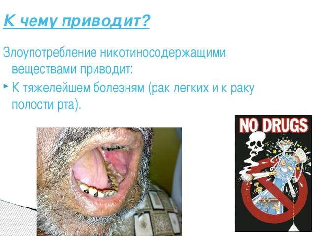 К чему приводит? Злоупотребление никотиносодержащими веществами приводит: К т...